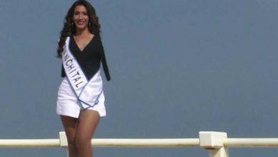 """صورة """"آنا جابريلا"""" عارضة أزياء بلا ذراعين تطمح للفوز بلقب ملكة الجمال"""