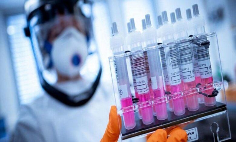 صورة الكشف عن صور جديدة توضح كيفية إصابة فيروس كورونا لخلايا الرئة