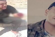 صورة بتروا ذراعيه وفقأوا عينه.. جريمة بشعة بحق طفل في الأردن